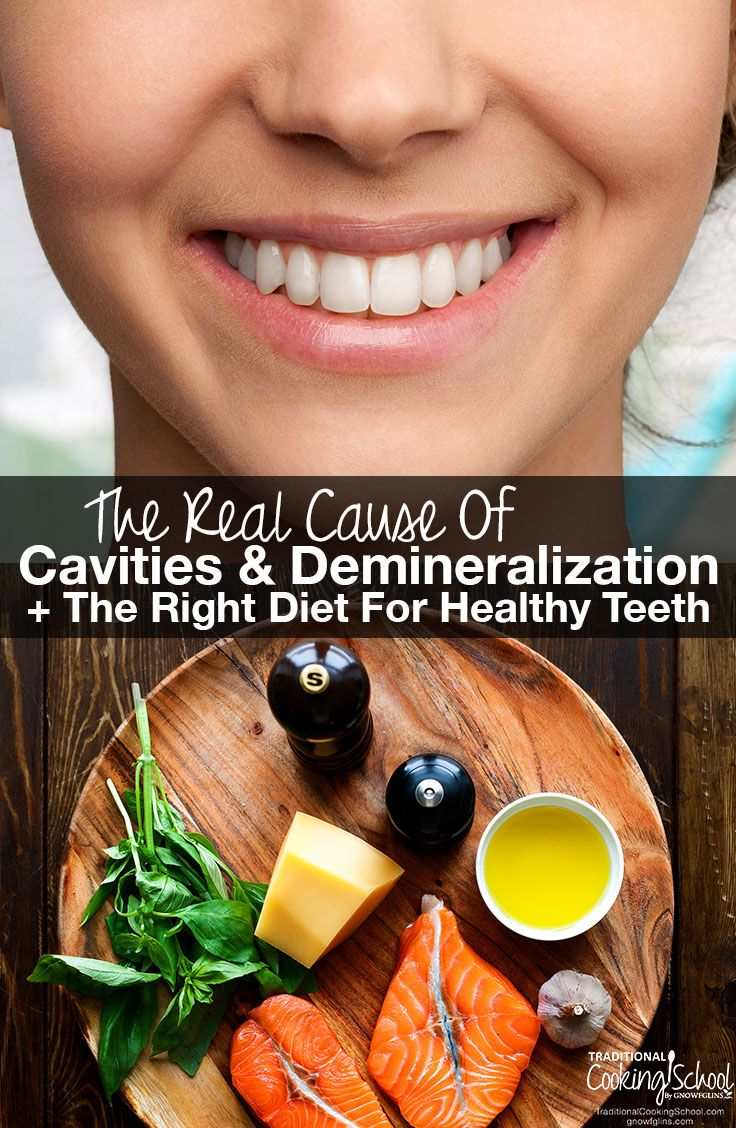 Despite the myths, sugar and bacteria aren't the real culprits that cause tooth decay. Learn the REAL cause of cavities and demineralization, the foods you should avoid if you've experienced tooth decay (hint: over 85% of Americans have tooth decay!), plus the RIGHT diet for healthy teeth. [by Lindsey Dietz]