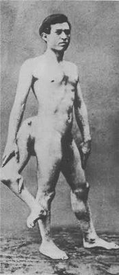 medical photograph of Frank Lentini where the anatomy of his extra ...: https://www.pinterest.com/pin/185210603397771476