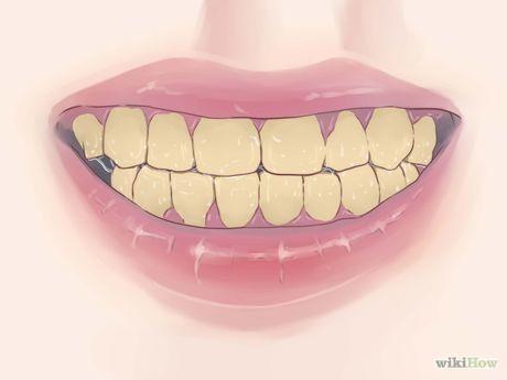 Restore Tooth Enamel Step 2.jpg