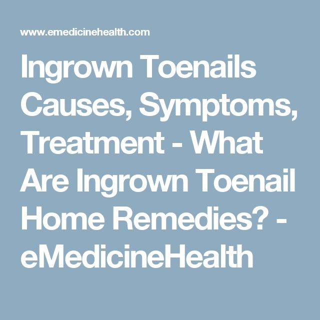 Ingrown Toenails Causes, Symptoms, Treatment - What Are Ingrown Toenail Home Remedies? - eMedicineHealth