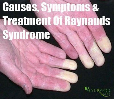 Causes, Symptoms And Treatment Of Raynauds Syndrome