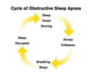What Exactly Is Sleep Apnea?