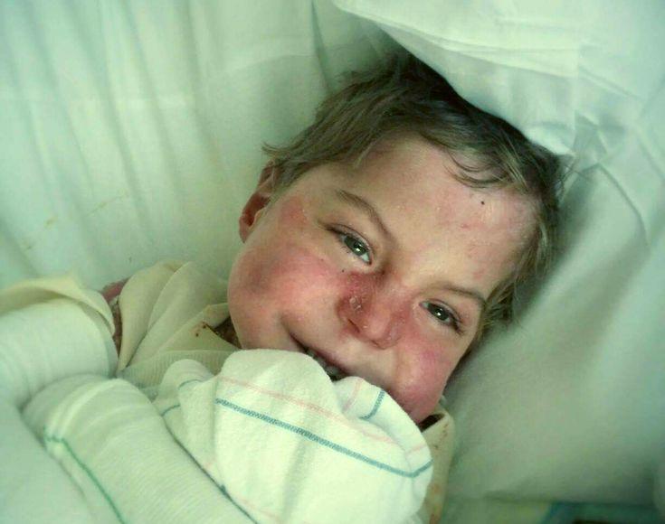 15 декабря умер Антон Дельгадо  – мальчик, благодаря которому  сотни детей-бабочек в России получили шанс жить без боли