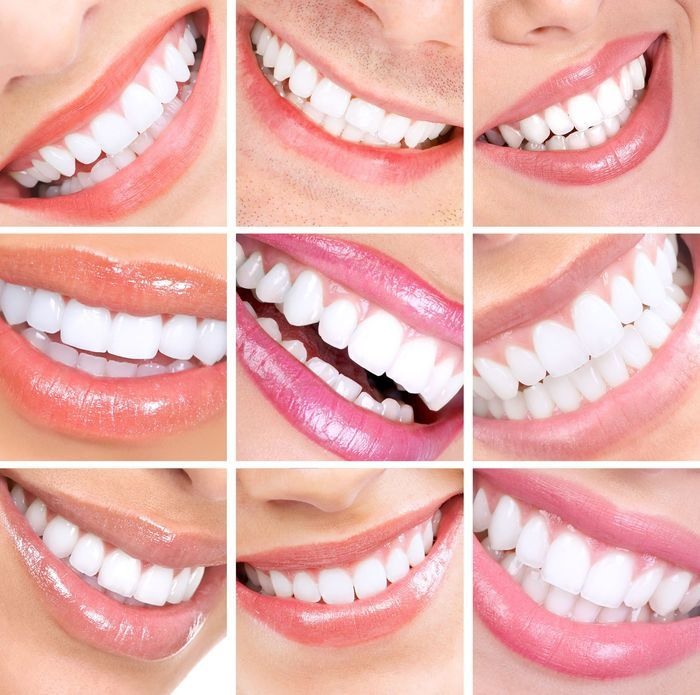 Hollywood FL Porcelain Dental Veneers | South Florida Dental http://www.thedaviedentist.com/home