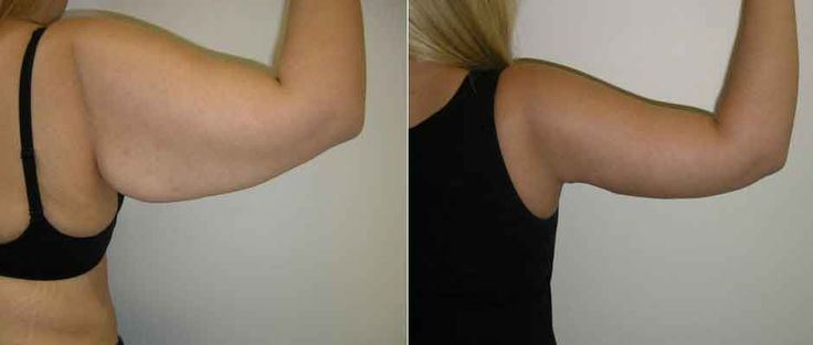 Arm reduction liposuction 13 – Liposuction before and after