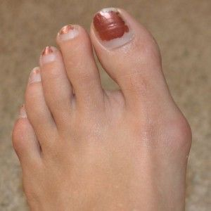 Never really knew what this was, but have seen it on women for years.  Pinning to help others.  How to Get Rid Of Bunions - iHomeRemedy
