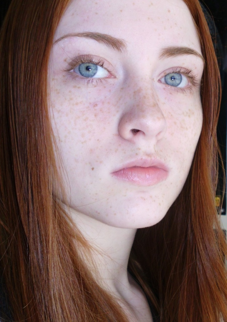 744 Best Images About Freckles And Fair Skin On Pinterest