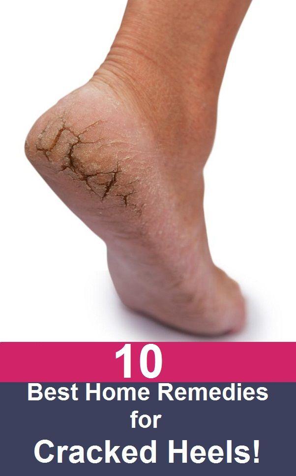 10 Simple Home Remedies For Cracked Heels #crackedheel #beautytips