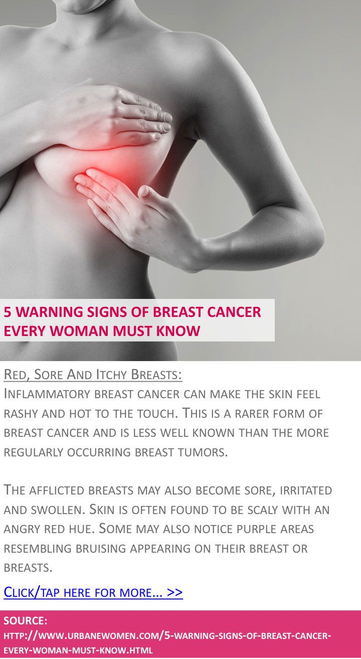5 warning signs of breast cancer every woman must know - Red, sore, and itchy breasts - Click for more: http://www.urbanewomen.com/5-warning-signs-of-breast-cancer-every-woman-must-know.html