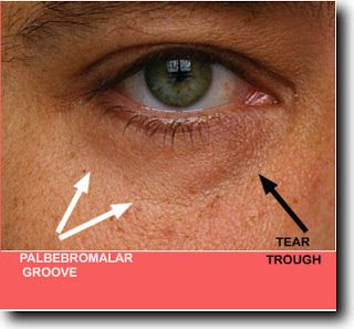 Patients with dark circles under their eyes complain that they look tired. The condition is called periorbital hyperpigmentation. #eyebags #darkeyecircles #eyeshadow