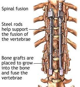 This is what my spine looks like. I will have stainless steel rods and pins and bone grafts taken from my hip and a bone graft bank to be fused into my spine.