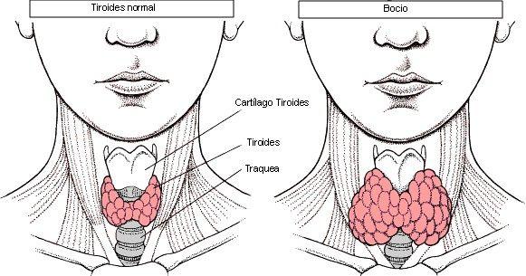 """Más de la mitad de la población española reconoce no saber nada o casi nada sobre el cáncer de tiroides según los resultados obtenidos en el análisis """"Percepción social del cáncer de tiroides en España"""" que ha realizado la Asociación Española de Cáncer de Tiroides (AECAT)"""