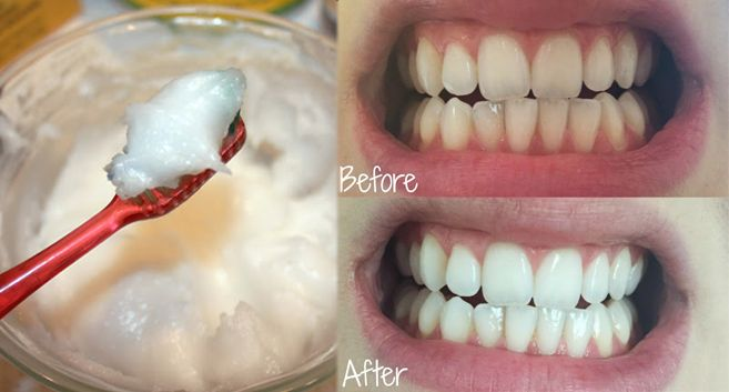 Whitening Teeth: Step by Step guide to making your own Coconut Oil Toothpaste