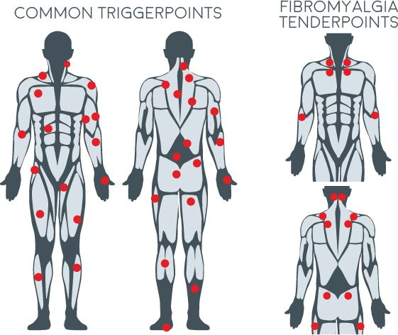Effective Trigger Point Therapy For Muscle Knots Manual Guide