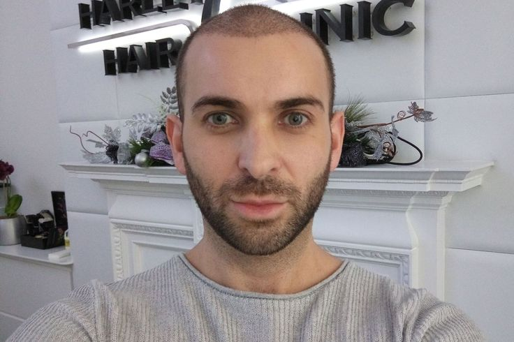 Fashion and grooming blogger Edward Lemont, aka The Discerning Man, aims to fix his male-pattern baldness by undergoing an FUE hair transplant surgery