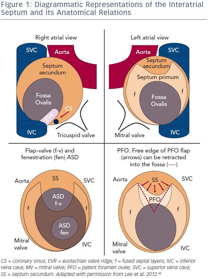 Atrial septum anatomy