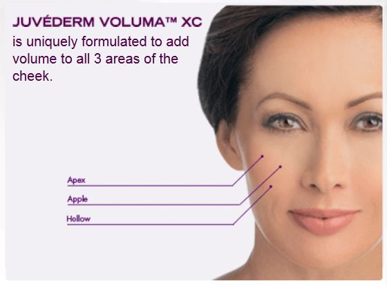 Have you heard about JUVEDERM VOLUMA™?  The best for mid-face (cheek) volume, this filler adds dimension!