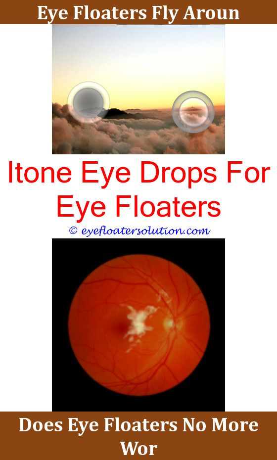 Are There Any Cures For Eye Floaters Anexa Beauty