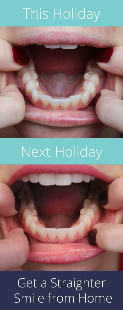New year, new you. Get the smile you've always wanted for up to 70% less than other treatment options with SmileCareClub. See how it works and get started with your free smile assessment and risk-free evaluation today!