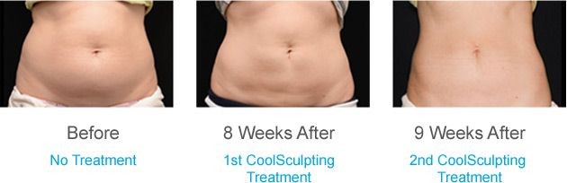 Best coolsculpting doctors in NYC  to reduce your body fat and make you look slim.