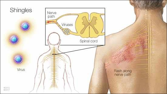 Shingles is a viral infection that triggers a painful, blistery rash. It's caused by the varicella-zoster virus — the same virus [...]