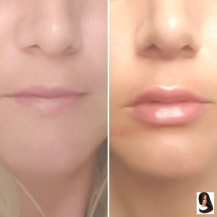 Berühmte Lippenoperation vor und nach dem Abnehmen