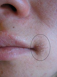 Mundwinkelrhagade – Wikipedia