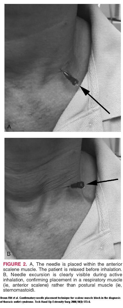 how to fix thoracic outlet syndrome