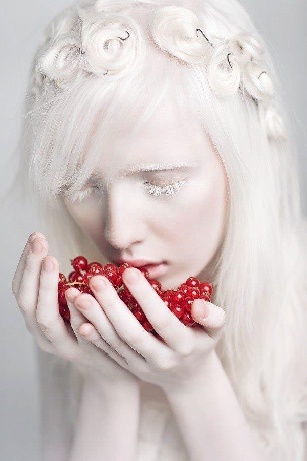 Albinismo (82)Ragazza Albino girl................... ●❥❥●〰❤️〰. ╰⊰✿  SOlHOlME ✿⊱╮ ∽ 。。。∽