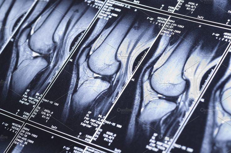 Knee mri scan in 2020 knee mri mri scan mri