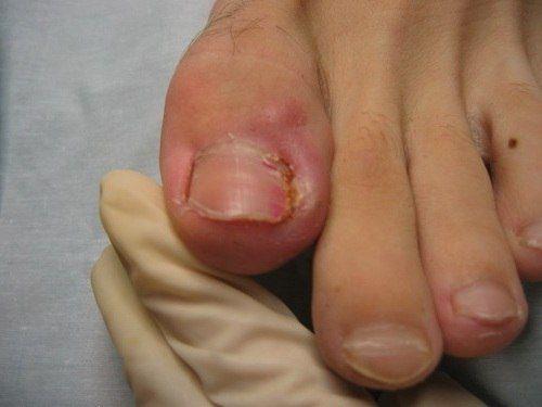 """Народное лечение вросшего ногтя Рецепт очень простой и очень эффективный: нужно взять пилку для ногтей и пропилить две линии крестом прямо на ногте, глубина надпила должна быть такой, как вы сами почувствуйте что дальше некуда. Крест должен быть на весь ноготь. После этой процедуры ноготь станет """" плавать"""" то есть будет мягкий, края где он врос можно будет отогнуть или вообще отрезать, и самое главное исчезает давление на палец при ходьбе. Облегчение чувствуешь уже на следующий день, а через"""