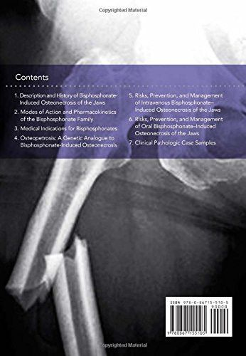 Oral and Intravenous Bisphosphonate Induced Osteonecrosis of the Jaws: History, Etiology, Prevention