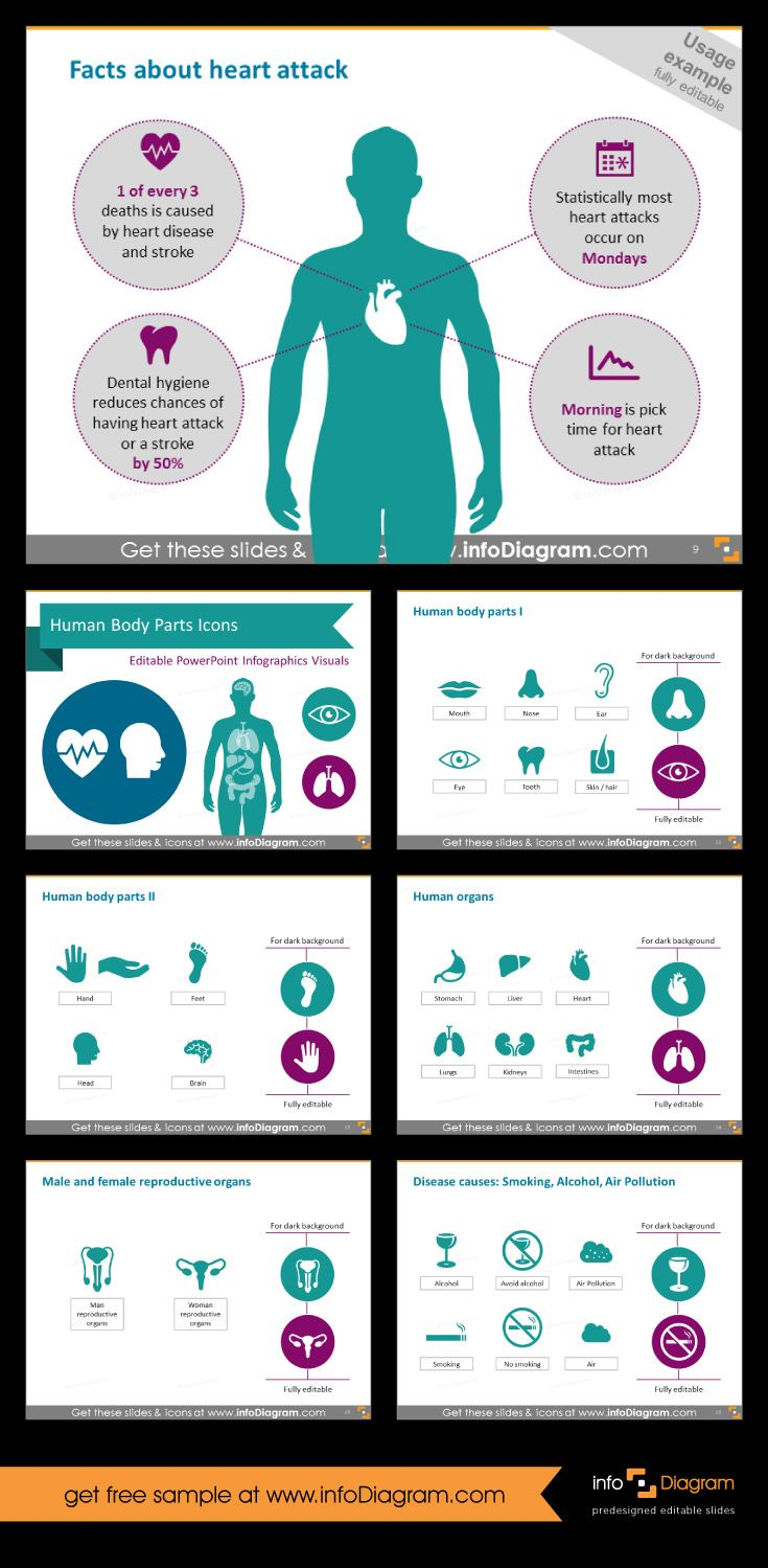 Heart attack - infographic. It's part of Health care infographics and icons - Human Body Parts and Organs (PowerPoint)