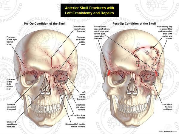 This exhibit depicts anterior fractures of the skull with a subsequent left craniotomy and repairs. Pre-operatively, fractures of the anterior skull can be seen, including: bilateral fractures of the frontal bone, bilateral orbital roof fractures, disruption of the ethmoid sinus roof, displaced fracture of the left nasal bone, displaced left tripod fracture, left orbital fractures, and left maxillary fractures. Bone graft struts and metal plates were used to fixate fractures of the zygomatic…