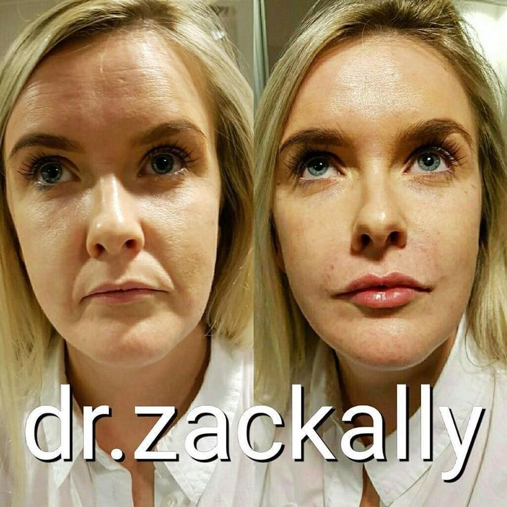 how to get rid of jowls surgery