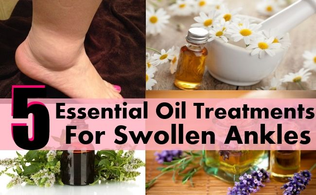DIY Home Remedies, Kitchen Remedies and Herbs - http://www.remediesandherbs.com/essential-oil-treatments-for-swollen-ankles-legs-and-feet/