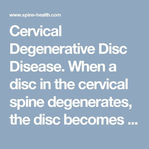 Cervical Degenerative Disc Disease. When a disc in the cervical spine degenerates, the disc becomes flatter and stiffer and does not support the spine as well. In some people this degenerative process can lead to inflammation or impingement of the nearby nerve root. Cervical degenerative disc disease is a common cause of radiculopathy in people over age 50.