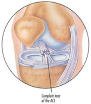 Anterior Cruciate Ligament Tear (Torn ACL) – This injury can cause a lay-off of several months in an athlete.  http://painreliefclinic.ie/torn-anterior-cruciate-ligament-acl-tear-relief-and-treatment-in-limerick-city.php