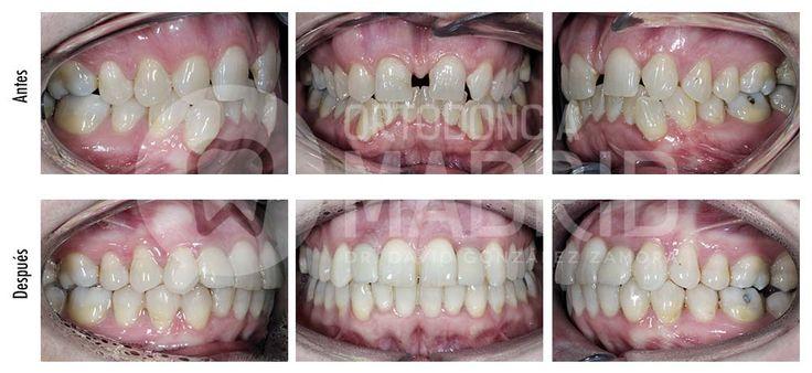 Agenesia de incisivos laterales  #ortodoncia #ortodonciamadrid