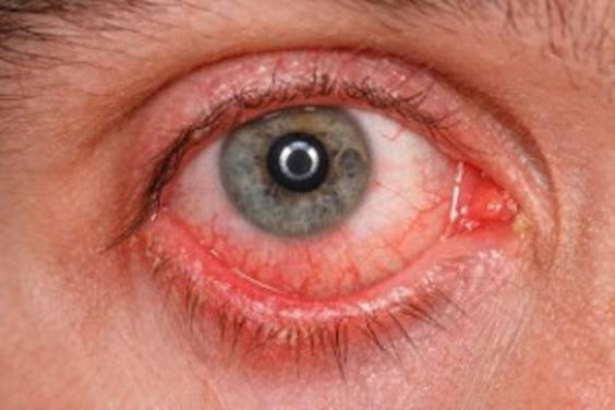 How to Get Rid of Pink Eye? In this article, we will tell you ways to get rid of pink eye. Sometimes, when you rub your eyes to stop itching, but they don't stop itching. After some time they get red and swollen. This is nothing but pink eye or conjunctivitis. It causes the inflammation of the outer layer and inside of the ... #AvoidPinkEye, #CurePinkEye, #CurePinkEyeNaturally, #GetRidOfPinkEyeFast, #PinkEye, #PinkEyeSymptoms, #PinkEyeTreatment, #RemediesForPinkEye, #Trea