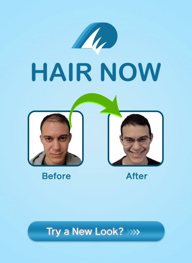 """Get the New Free """"Hair Now"""" App for the iPhone to see if Hair Transplant Surgery is Right for You"""