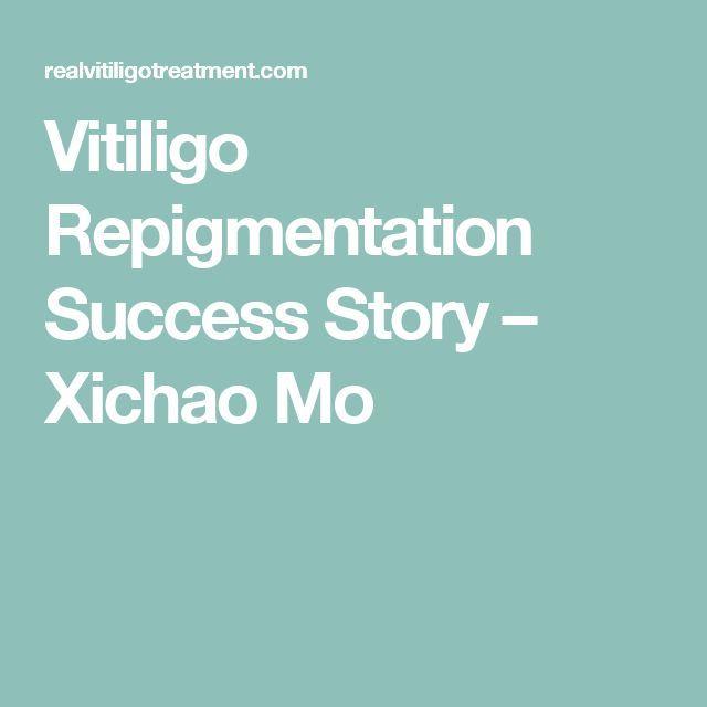 Vitiligo Repigmentation Success Story  Xichao Mo