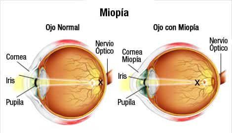 ✔️ 👌 Bebida natural para tratar la miopía, mejora tu visión al 100%. Si sufres de miopía, sabes lo molesto que es no poder ver con claridad los objetos que...