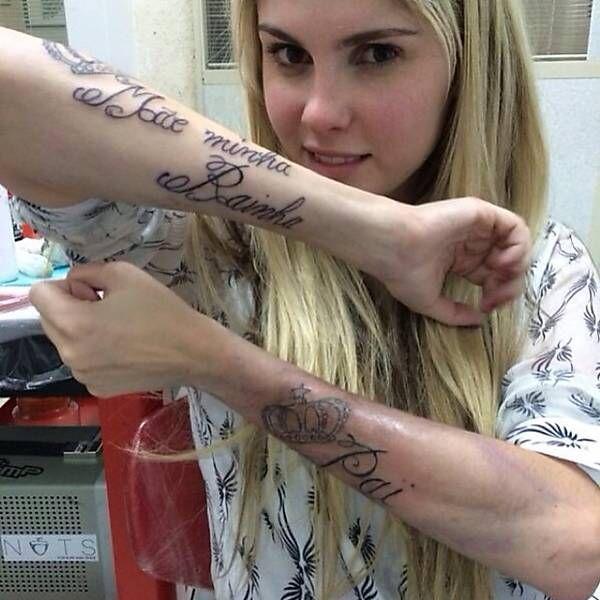 remoção-de-tatuagem-a-laser.jpeg (600×600)