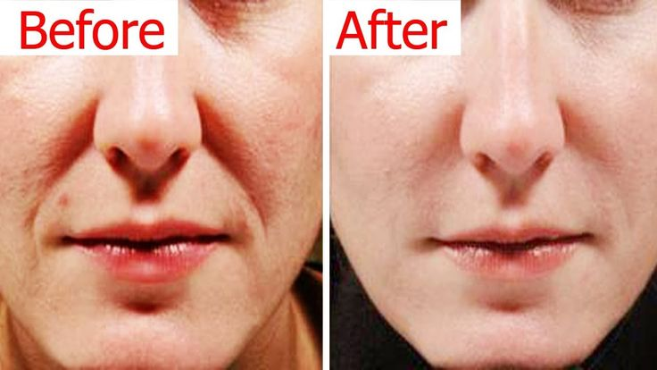 How to get rid of laugh lines naturally remove wrinkles