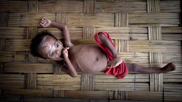 """un bebé de 2 años,murió ser llevado por sus padres al hospital de Colonia Santa Rosa, Salta. El parte médico precisó que la causa del fallecimiento se produjo por """"diarrea y deshidratación por desnutrición"""""""