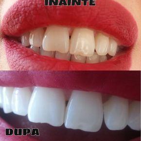 Ciao! In questo video troverete un rimedio naturale, economico e relizabile in casa per sbiancare i denti in 5 minuti!