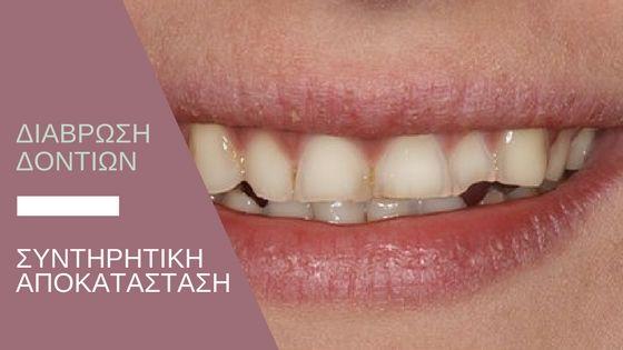 Προσθετική αποκατάσταση της διάβρωσης των δοντιών.