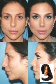Asian Rhinoplasty Before and After Photos, Vancouver Surgery Patient 10 – #Asian #Patient #Photos #rhinoplasty #surgery #vancouver