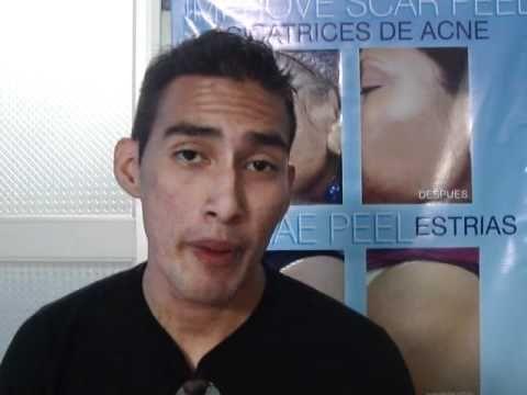 Testimonio: Tratamiento de acne con Green peel de Roly por Dermatologo en Lima Perú (2) - http://solucionparaelacne.org/blog/testimonio-tratamiento-de-acne-con-green-peel-de-roly-por-dermatologo-en-lima-peru-2/